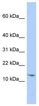 Western blot - SNRPD2 antibody (ab86354)