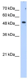 Western blot - Sulfatase 2 antibody (ab86368)