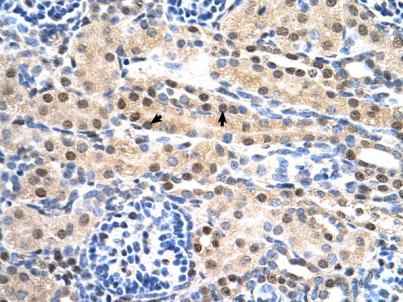 Immunohistochemistry (Formalin/PFA-fixed paraffin-embedded sections) - Sulfatase 2 antibody (ab86368)