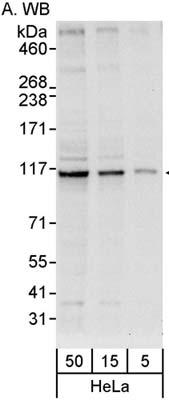 Western blot - DDX26 antibody (ab86369)