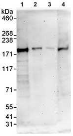 Western blot - MAP4K6 antibody (ab86385)