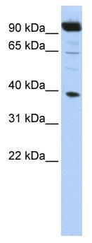 Western blot - HOXB2 antibody (ab86386)