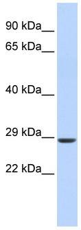 Western blot - SIX2 antibody (ab86389)