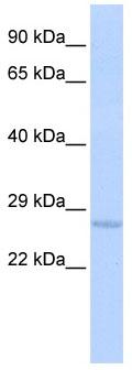 Western blot - Use1 antibody (ab86396)