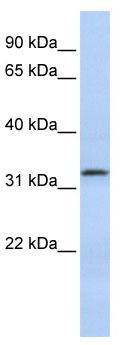 Western blot - LACTB2 antibody (ab86407)
