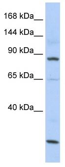 Western blot - MSH5 antibody (ab86410)