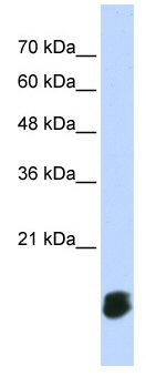 Western blot - Glutaredoxin 5 antibody (ab86411)