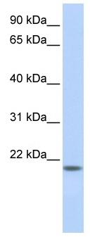 Western blot - LOC284805 antibody (ab86413)
