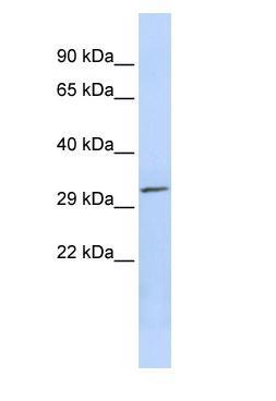 Western blot - PDXP antibody (ab86422)