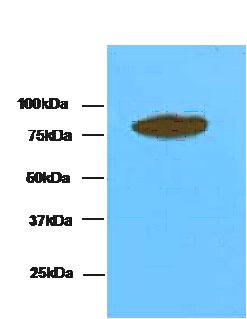 Western blot - Transglutaminase 4 antibody [AT1H1] (ab86426)