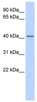 Western blot - SNURPORTIN1 antibody (ab86433)