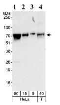 Western blot - DNAJC21 antibody (ab86434)