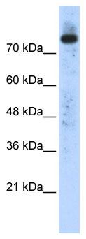 Western blot - Phospholipase D2 antibody (ab86437)