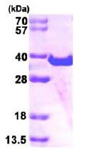 SDS-PAGE - SPG21 protein (His tag) (ab86438)