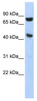 Western blot - Ribonuclease Inhibitor antibody (ab86443)