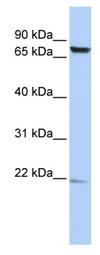 Western blot - Anti-DKFZp727G131 antibody (ab86502)