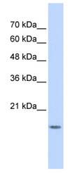 Western blot - GABARAPL1 antibody (ab86503)