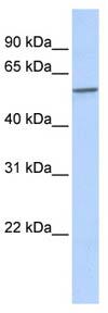 Western blot - SPAG8 antibody (ab86505)