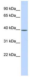 Western blot - MAT2B antibody (ab86506)