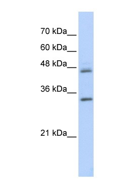 Western blot - PRELP antibody (ab86509)