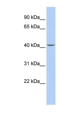 Western blot - Septin 2 antibody (ab86512)