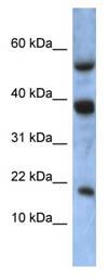Western blot - ATXN7L1 antibody (ab86520)