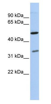 Western blot - PQBP1 antibody (ab86525)
