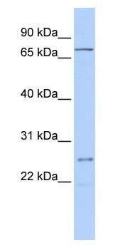 Western blot - GALNT14 antibody (ab86526)