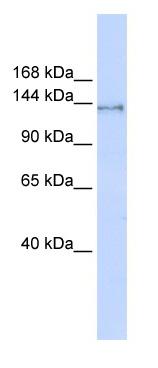 Western blot - SUPT16H antibody (ab86529)