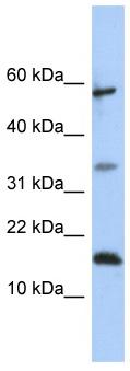 Western blot - LCN6 antibody (ab86531)