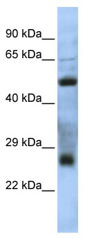 Western blot - C7orf62 antibody (ab86532)