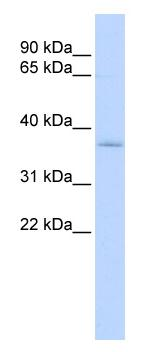 Western blot - SFXN3 antibody (ab86537)