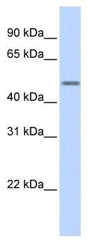 Western blot - Cytokeratin 16 antibody (ab86541)