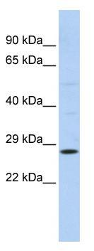 Western blot - RAB38 antibody (ab86542)