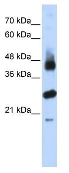 Western blot - FBXL2 antibody (ab86545)