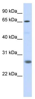 Western blot - RNF186 antibody (ab86546)