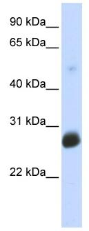 Western blot - RNF186 antibody (ab86547)