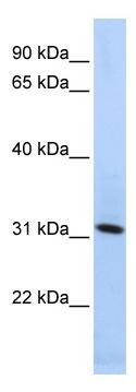 Western blot - Synaptogyrin 4 antibody (ab86550)