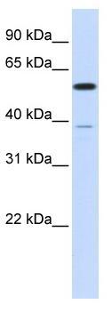 Western blot - PPP2R5A antibody (ab86551)