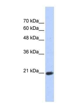 Western blot - TCEAL8 antibody (ab86553)