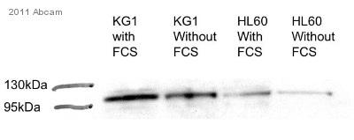 Western blot - ST18 antibody (ab86563)