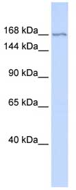 Western blot - ZBTB40 antibody (ab86569)