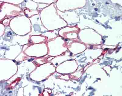 Immunohistochemistry (Formalin/PFA-fixed paraffin-embedded sections) - Anti-NFIC antibody (ab86570)
