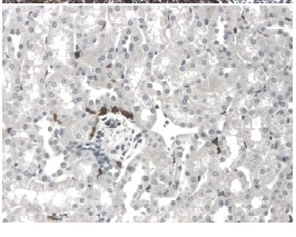 Immunohistochemistry (Formalin/PFA-fixed paraffin-embedded sections) - TNFRSF18 antibody [RM0066-7C13] (ab86574)