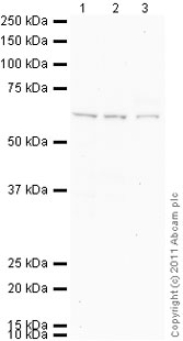 Western blot - alpha 1 Fetoprotein antibody (ab86583)