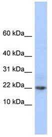 Western blot - C9orf25 antibody (ab86584)