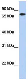 Western blot -  KLHL23  antibody (ab86585)
