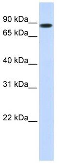 Western blot - STAT5b antibody (ab86586)