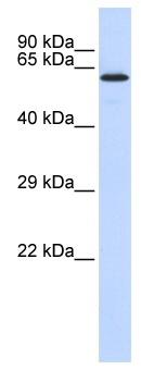 Western blot - JMJD4 antibody (ab86591)