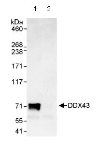 Immunoprecipitation - DDX43 antibody (ab86596)